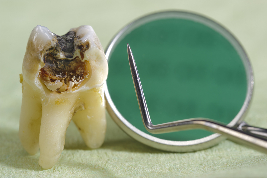 Extracted tooth showing large area of decay.