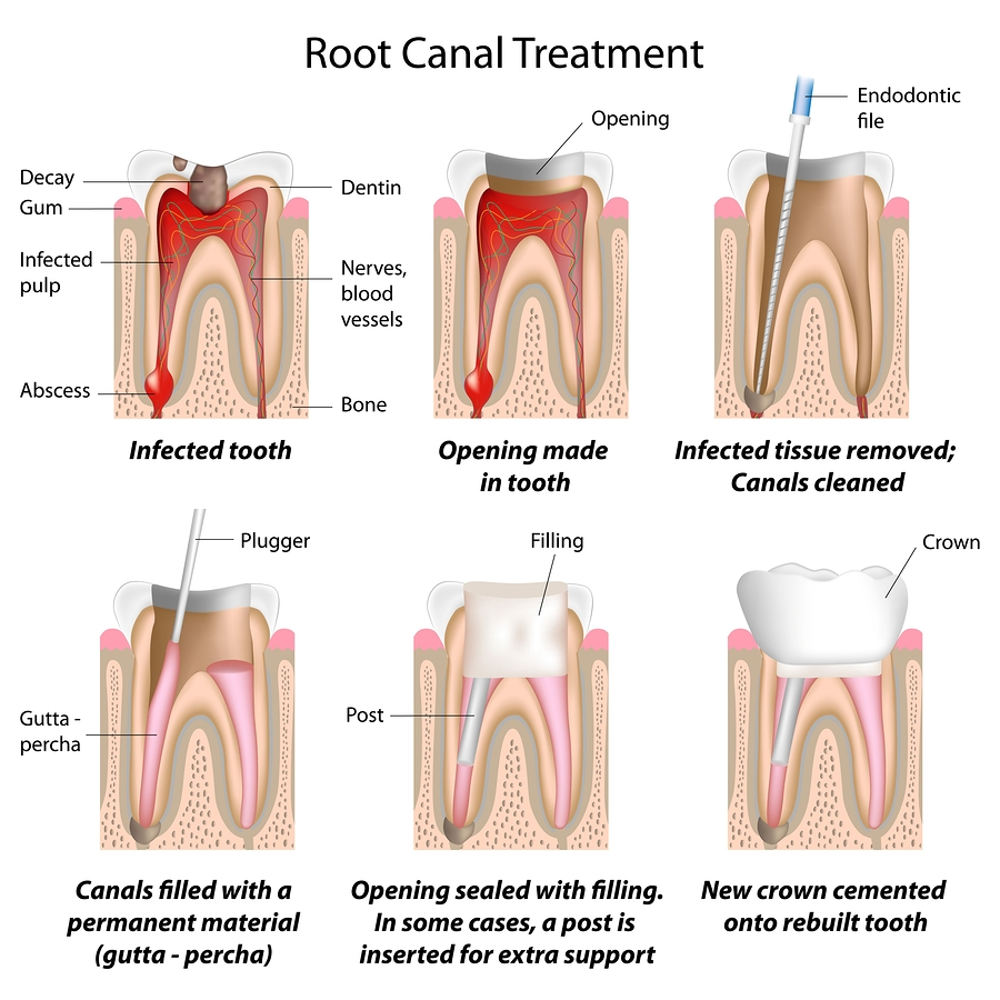 riverside dental ~ root canal